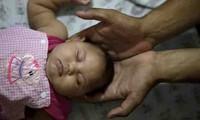 Sigue expandiéndose la enfermedad de zika en América del Sur