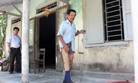 Tăng cường hỗ trợ nạn nhân bom mìn Việt Nam