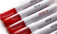 ความสำเร็จในการรักษาผู้ติดเชื่อไวรัสเอชไอวีรายที่สองจนหายป่วย