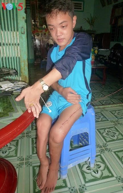 Kisah dalam mengatasi kesulitan dari keluarga dengan tiga generasi yang adalah korban oranye/dioxin - ảnh 2