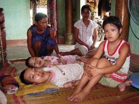 US-Wissenschaftler helfen Agent-Orange-Opfern in Vietnam - ảnh 1