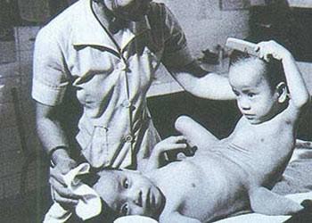 Борьба вьетнамских жертв эйджен-оранжа/диоксина за справедливость - ảnh 1
