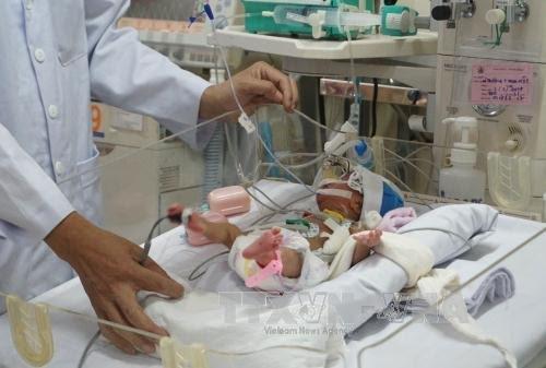 แพทย์โรงพยาบาลเด็กหมายเลข1ผ่าตัดให้แก่เด็กที่มีหัวใจผิดปกติรายที่5ของโลกได้สำเร็จ - ảnh 1