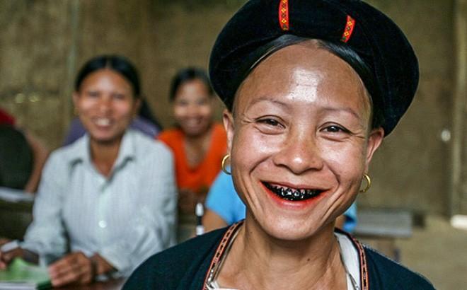 Les dents noires des femmes Lu - ảnh 1