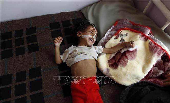 ยูนิเซฟเรียกร้องให้ขยายการช่วยเหลือด้านมนุษยธรรมแก่เด็กเยเมน - ảnh 1